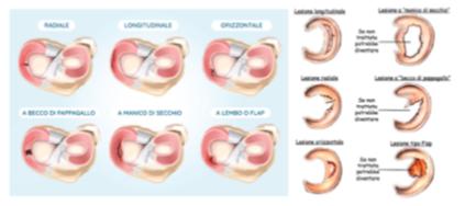 Lesione menisco_02