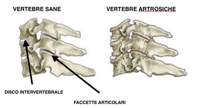 Artrosi_Cervicale_01