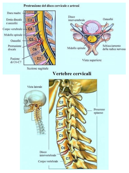 Cervicobrachialgia_04