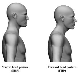 la-postura-della-testa-in-avanti-fhp-02