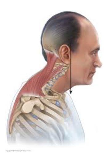 la-postura-della-testa-in-avanti-fhp-03
