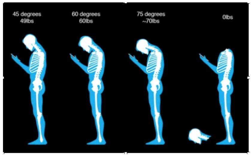la-postura-della-testa-in-avanti-fhp-06