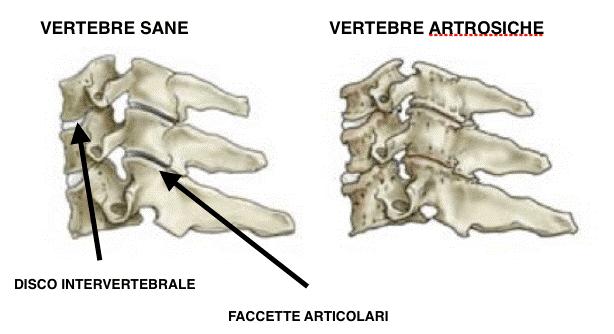 artrosi cervicale 02