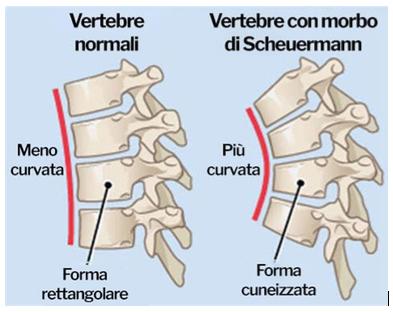 malattia di Scheuermann 03